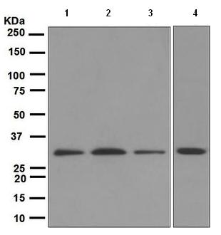 Western blot - Anti-Cdk4 antibody [EPR4513] (ab108357)