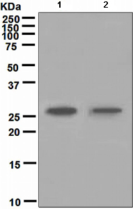 Western blot - Carbonic Anhydrase I antibody [EPR5193] (ab108367)