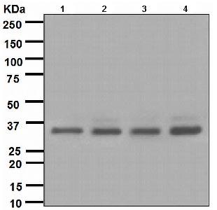 Western blot - BRCC36 antibody [EPR4366] (ab108411)