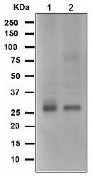 Western blot - Bcl10 antibody [EPR3174] (ab108412)