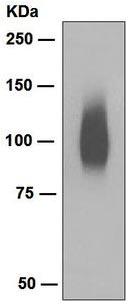 Western blot - Band 3 antibody [EPR1426] (ab108414)