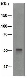 Western blot - Cytokeratin 14 antibody [EPR1612] (ab108417)