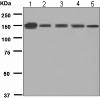 Western blot - Integrin alpha E antibody [EPR4166] (ab108503)