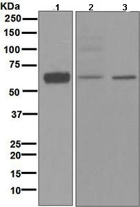 Western blot - HRH2 antibody [EPR5630] (ab108540)