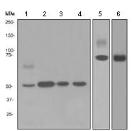 Western blot - Granulin antibody [EPR3781] (ab108608)
