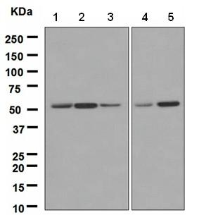 Western blot - ING3 antibody [EPR3808] (ab108610)