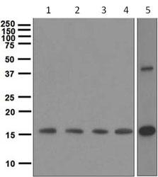 Western blot - GDF3 antibody [EPR4828] (ab108617)