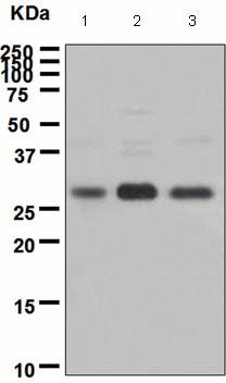 Western blot - ING4 antibody [EP3804] (ab108621)