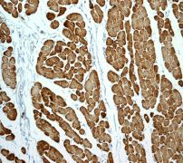 Immunohistochemistry (Formalin/PFA-fixed paraffin-embedded sections) - Myosin light chain 3 antibody [EPR4160] (ab108923)
