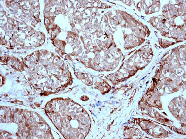 Immunohistochemistry (Formalin/PFA-fixed paraffin-embedded sections) - ICAD  antibody [EPR4220] (ab108924)