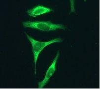 Immunocytochemistry/ Immunofluorescence - Ube2L3 antibody [EPR4368] (ab108936)