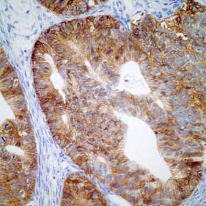 Immunohistochemistry (Formalin/PFA-fixed paraffin-embedded sections)-Anti-GPA33 antibody [EPR4240](ab108938)