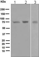 Western blot - PKC zeta antibody [EP1490(2)] (ab108970)