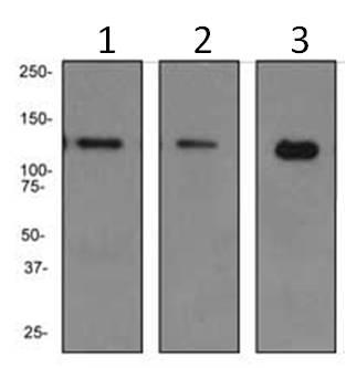 Western blot - PKN antibody [EPR3238] (ab108973)