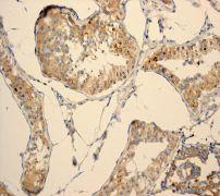 Immunohistochemistry (Formalin/PFA-fixed paraffin-embedded sections) - PHD1/prolyl hydroxylase antibody [EPR2] (ab108980)