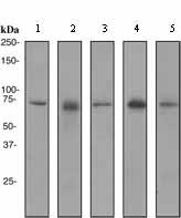 Western blot - SENP1 antibody [EPR3844] (ab108981)