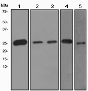 Western blot - PGP9.5 antibody [EPR4118] (ab108986)