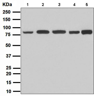 Western blot - Stromal interaction molecule 1 antibody [EPR3414] (ab108994)