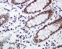 Immunohistochemistry (Formalin/PFA-fixed paraffin-embedded sections) - RSF1 antibody [EPR3749(2)] (ab109002)