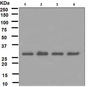 Western blot - RPA32/RPA2 antibody [EPR2876(2)] (ab109084)