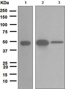 Western blot - Cytokeratin 20 antibody [EPR1621(2)] (ab109111)