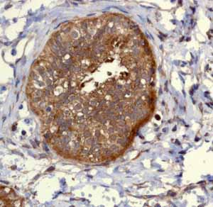 Immunohistochemistry (Formalin/PFA-fixed paraffin-embedded sections)-Anti-PIST antibody [EPR4079](ab109119)