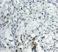 Immunohistochemistry (Formalin/PFA-fixed paraffin-embedded sections) - SATB1 antibody [EPR3951] (ab109122)