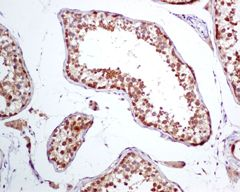 Immunohistochemistry (Formalin/PFA-fixed paraffin-embedded sections) - TCP1 alpha antibody [EPR4082] (ab109126)