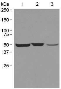Western blot - TCP1 beta antibody [EPR4083] (ab109184)