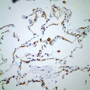 Immunohistochemistry (Formalin/PFA-fixed paraffin-embedded sections)-Anti-Thrombomodulin antibody [EPR4051](ab109189)