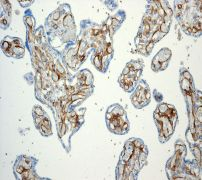 Immunohistochemistry (Formalin/PFA-fixed paraffin-embedded sections) - Thrombomodulin antibody [EPR4051] (ab109189)
