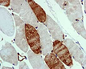 Immunohistochemistry (Formalin/PFA-fixed paraffin-embedded sections) - UNG antibody [EPR4371] (ab109214)