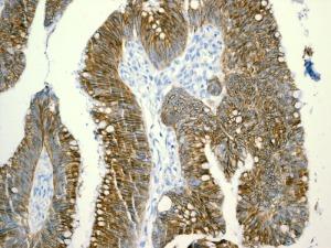 Immunohistochemistry (Formalin/PFA-fixed paraffin-embedded sections) - LI Cadherin antibody [EPR3997] (ab109220)