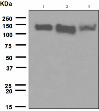 Western blot - R Cadherin antibody [EPR483] (ab109242)