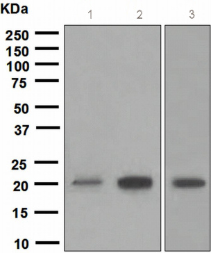 Western blot - SOCS2  antibody [EPR2588(2)] (ab109245)