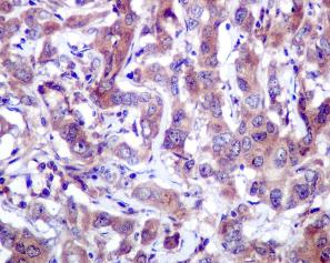 Immunohistochemistry (Formalin/PFA-fixed paraffin-embedded sections) - PDPK1 antibody [EPR245] (ab109253)