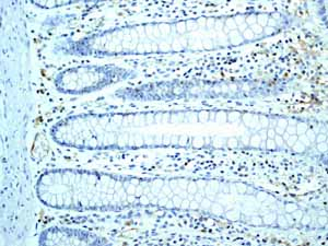Immunohistochemistry (Formalin/PFA-fixed paraffin-embedded sections)-Anti-SLP76 antibody [EPR2549(2)](ab109254)