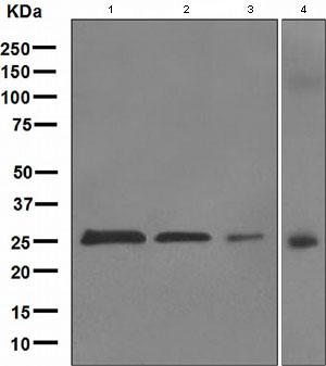Western blot - PGP9.5 antibody [EPR4117] (ab109261)