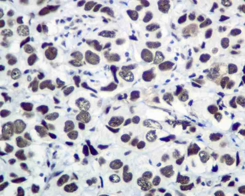 Immunohistochemistry (Formalin/PFA-fixed paraffin-embedded sections) - KAP1 antibody [EPR5216] (ab109287)