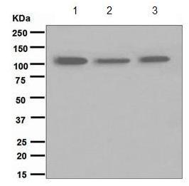 Western blot - TRPM8 antibody [EPR4196(2)] (ab109308)