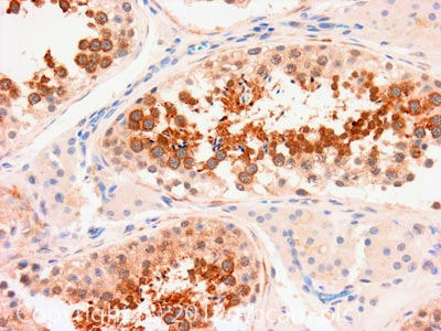 Immunohistochemistry (Formalin/PFA-fixed paraffin-embedded sections) - Anti-TIP49A antibody (ab109330)