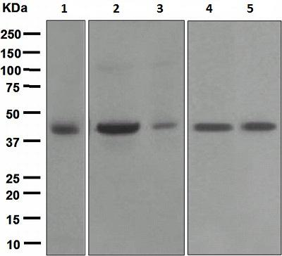 Western blot - Biglycan antibody [EPR2959] (ab109369)