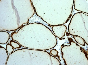 Immunohistochemistry (Formalin/PFA-fixed paraffin-embedded sections) - Thyroid Peroxidase antibody [EPR5380] (ab109383)