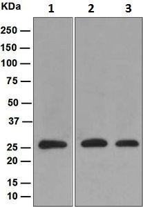 Western blot - Proteasome 20S alpha 5 antibody [EPR5832] (ab109387)
