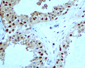 Immunohistochemistry (Formalin/PFA-fixed paraffin-embedded sections) - Proteasome 20S alpha 5 antibody [EPR5832] (ab109387)