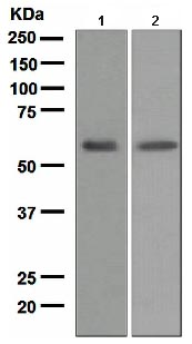 Western blot - LCAT antibody [EPR1383(2)] (ab109417)