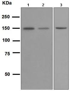Western blot - Integrin alpha 2 antibody [EPR5789] (ab109432)