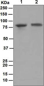 Western blot - Plakophilin 3 antibody [EPR5560] (ab109441)