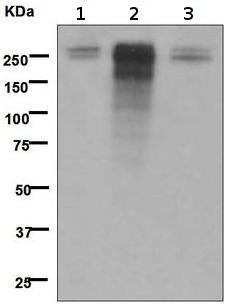Western blot - Desmoplakin antibody [EPR4383(2)] (ab109445)