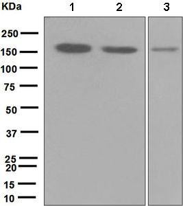Western blot - HDAC9 antibody [EPR5223] (ab109446)
